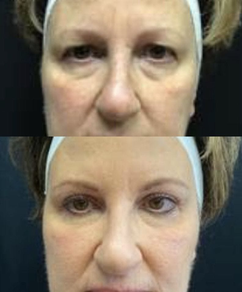 Upper Blepharoplasty Gallery - Patient 8523595 - Image 1