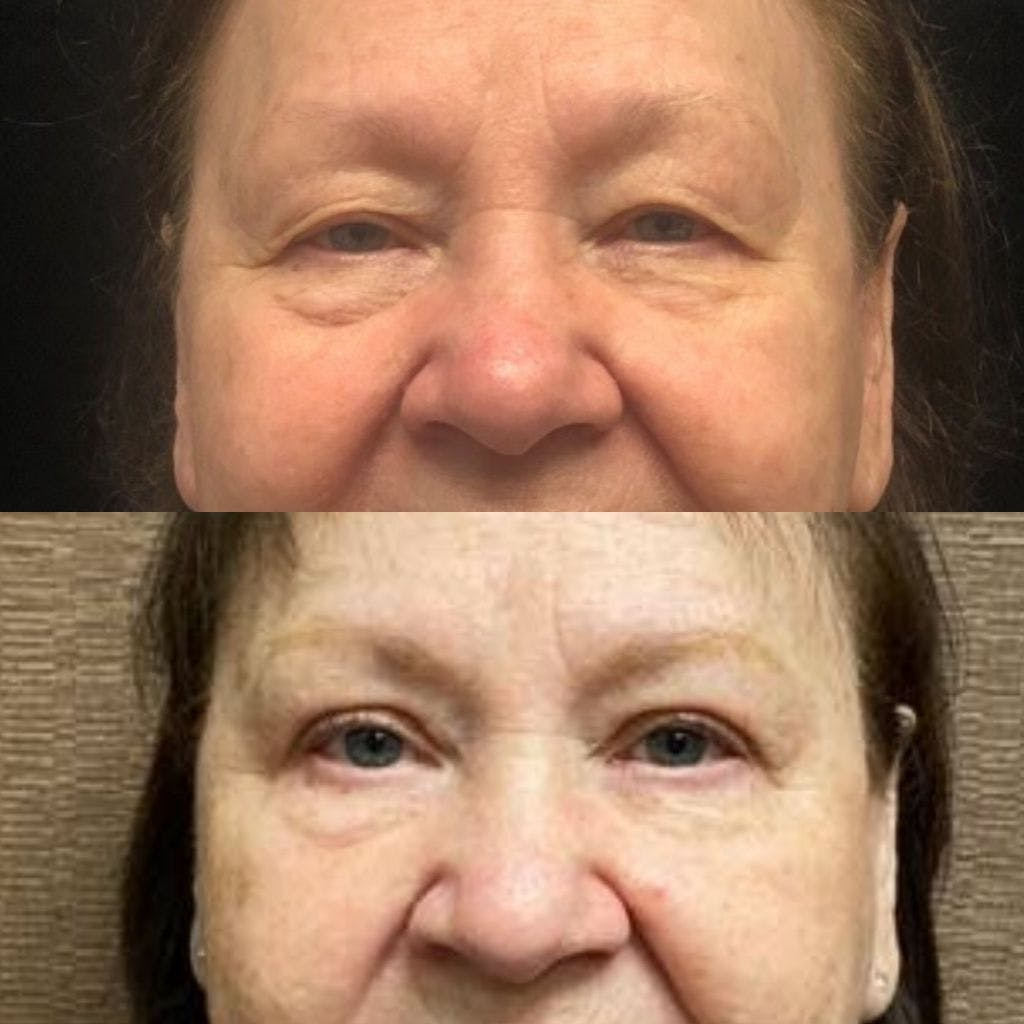 Upper Blepharoplasty Gallery - Patient 8523607 - Image 1