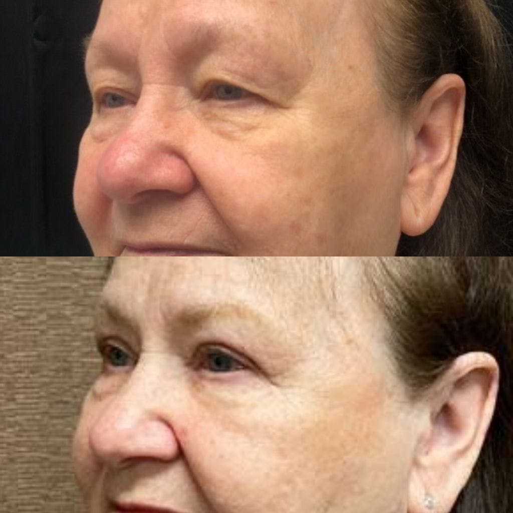 Upper Blepharoplasty Gallery - Patient 8523607 - Image 2