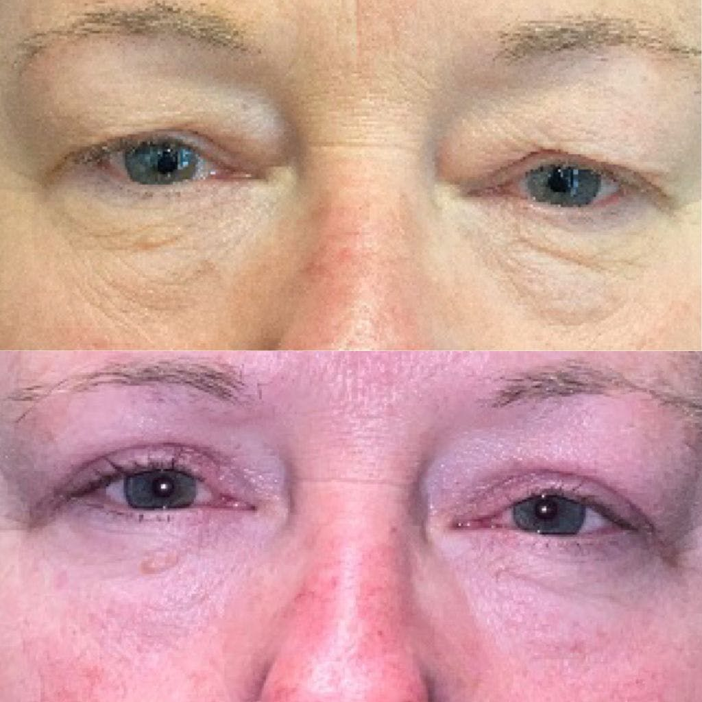 Upper Blepharoplasty Gallery - Patient 8523612 - Image 1