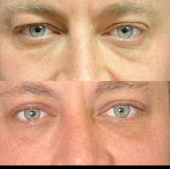 Upper Blepharoplasty Gallery - Patient 8523620 - Image 1