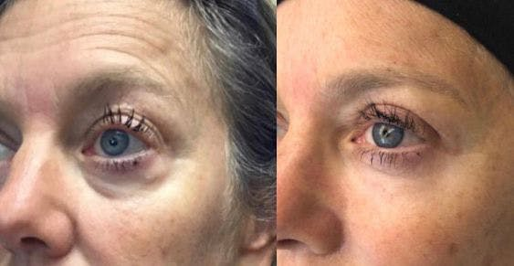 Upper Blepharoplasty Gallery - Patient 8523625 - Image 1