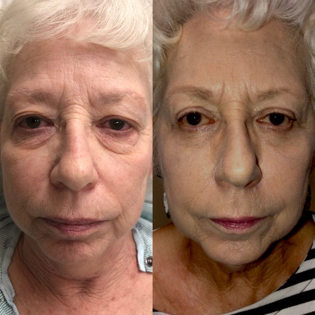 Upper Blepharoplasty Gallery - Patient 8523632 - Image 1