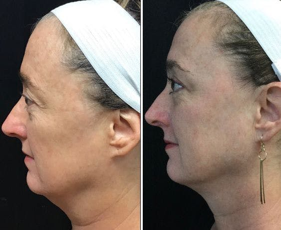 Upper Blepharoplasty Gallery - Patient 8523653 - Image 1
