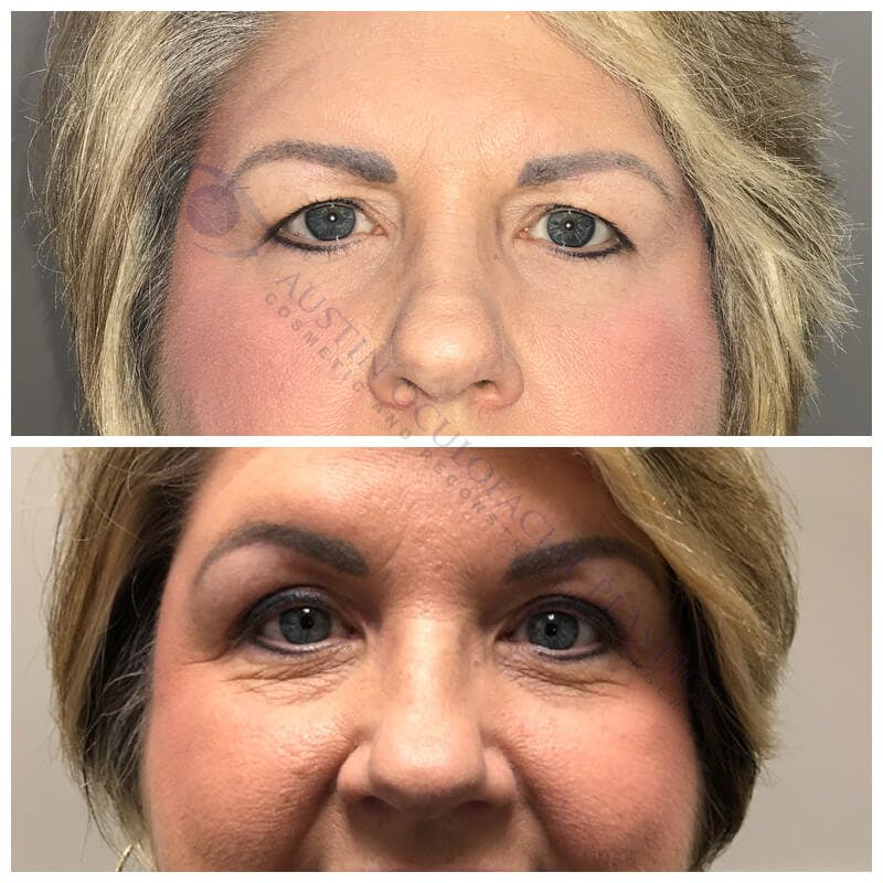 Upper Blepharoplasty Gallery - Patient 8523659 - Image 1