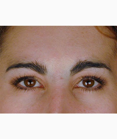 Brow Lift Gallery - Patient 8523809 - Image 1