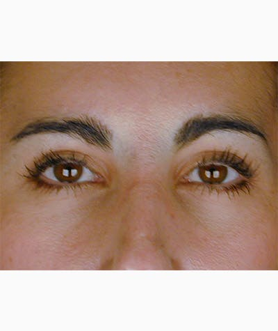 Brow Lift Gallery - Patient 8523809 - Image 2