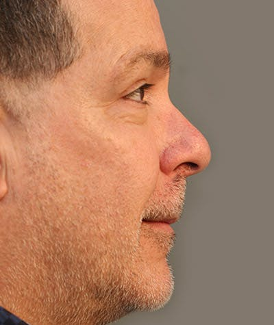Chin Augmentation Gallery - Patient 8523812 - Image 1
