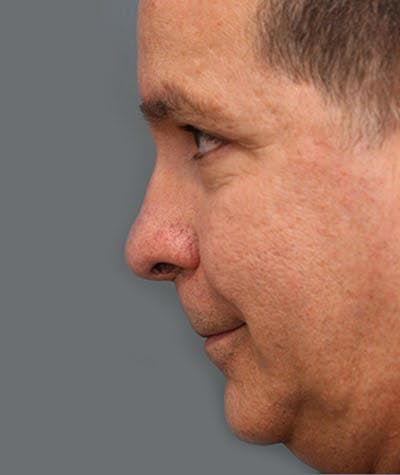 Chin Augmentation Gallery - Patient 8523812 - Image 2
