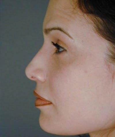 Ethnic Rhinoplasty Gallery - Patient 8523817 - Image 2