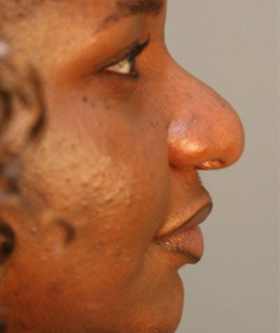 Ethnic Rhinoplasty Gallery - Patient 8523833 - Image 1