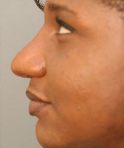 Ethnic Rhinoplasty Gallery - Patient 8523833 - Image 2