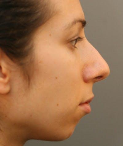 Ethnic Rhinoplasty Gallery - Patient 8523837 - Image 1