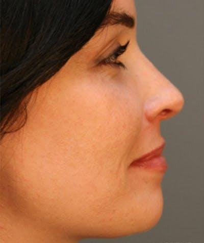 Ethnic Rhinoplasty Gallery - Patient 8523852 - Image 1