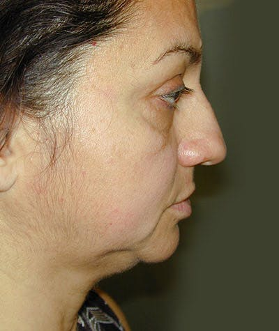Facelift Gallery - Patient 8523954 - Image 1