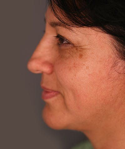 Facelift Gallery - Patient 8523954 - Image 2