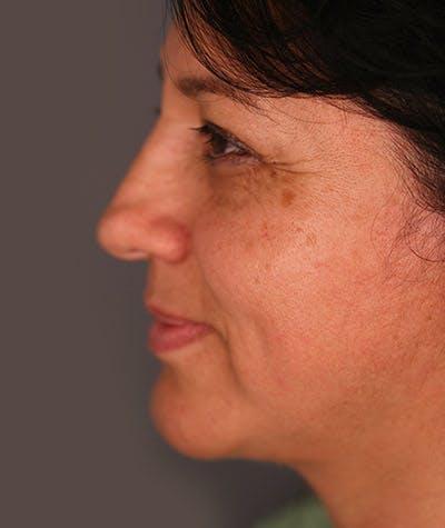 Facelift Gallery - Patient 8523954 - Image 2