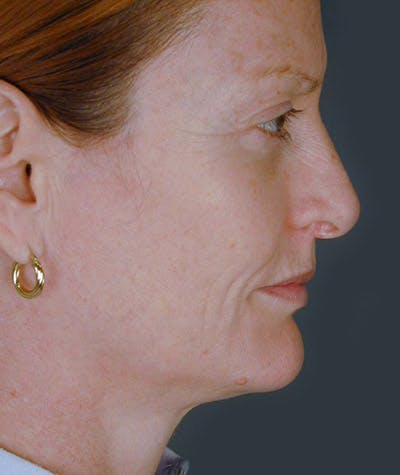 Facelift Gallery - Patient 8523955 - Image 1