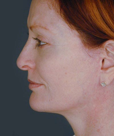 Facelift Gallery - Patient 8523955 - Image 2