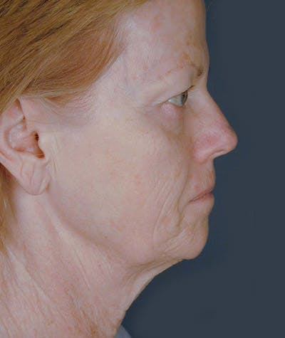 Facelift Gallery - Patient 8523961 - Image 1