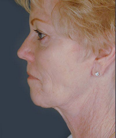 Facelift Gallery - Patient 8523961 - Image 2