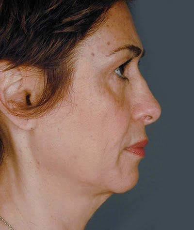 Facelift Gallery - Patient 8523993 - Image 1