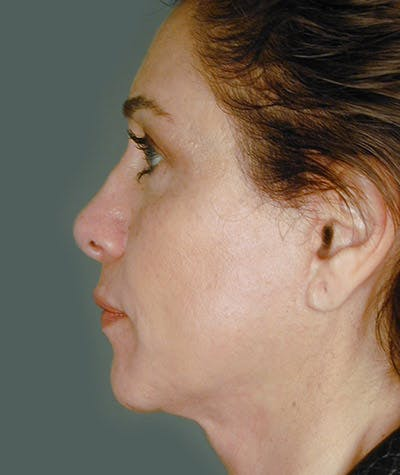 Facelift Gallery - Patient 8523993 - Image 2