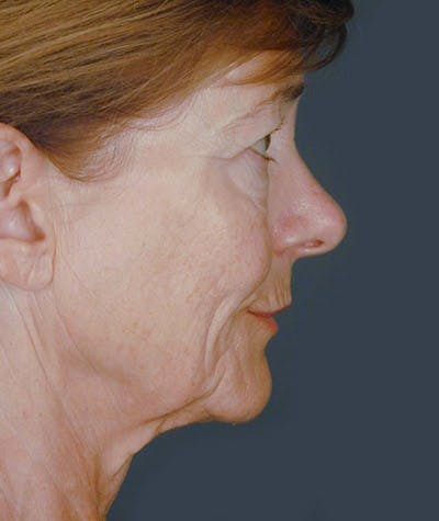 Facelift Gallery - Patient 8524049 - Image 1