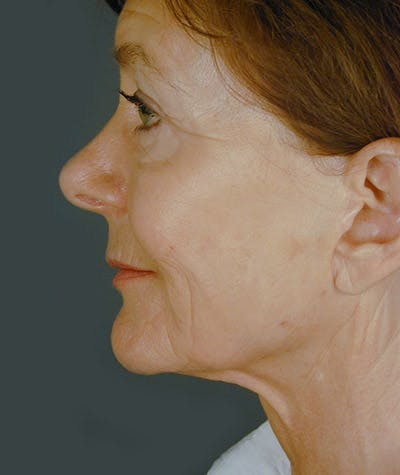 Facelift Gallery - Patient 8524049 - Image 2