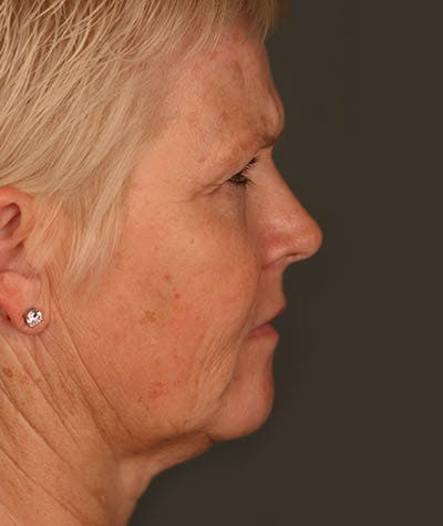 Facelift Gallery - Patient 8524120 - Image 1