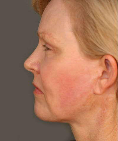 Facelift Gallery - Patient 8524120 - Image 2
