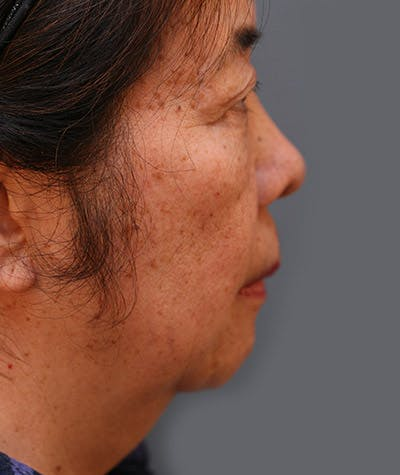 Facelift Gallery - Patient 8524178 - Image 1