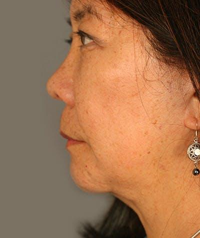 Facelift Gallery - Patient 8524178 - Image 2