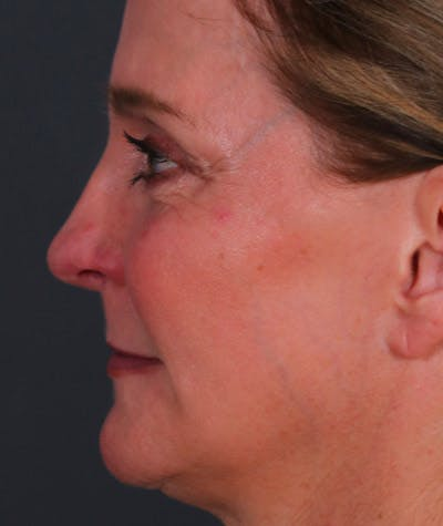 Facelift Gallery - Patient 8524367 - Image 2