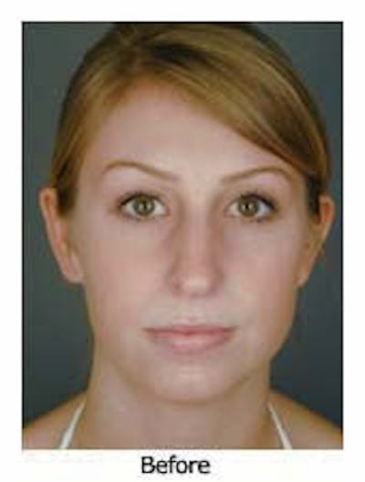 Otoplasty Gallery - Patient 8524522 - Image 1