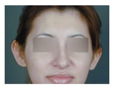 Otoplasty Gallery - Patient 8524545 - Image 1