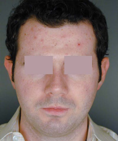 Otoplasty Gallery - Patient 8524566 - Image 1