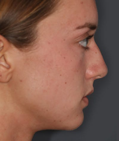 Rhinoplasty Gallery - Patient 8524637 - Image 1