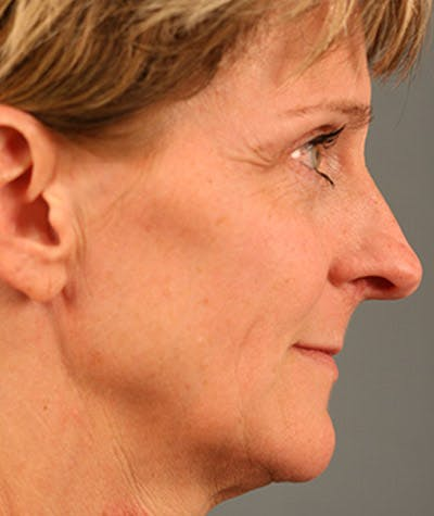 Rhinoplasty Gallery - Patient 8524689 - Image 1