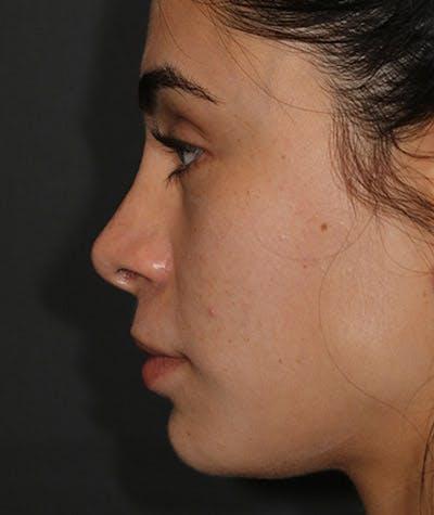 Rhinoplasty Gallery - Patient 8524706 - Image 2