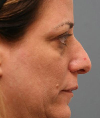 Rhinoplasty Gallery - Patient 8524741 - Image 1