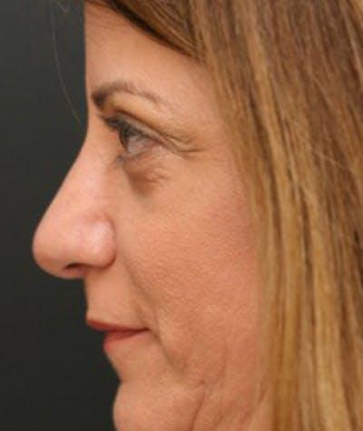 Rhinoplasty Gallery - Patient 8524741 - Image 2