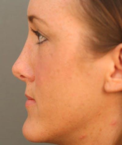 Rhinoplasty Gallery - Patient 8524747 - Image 2