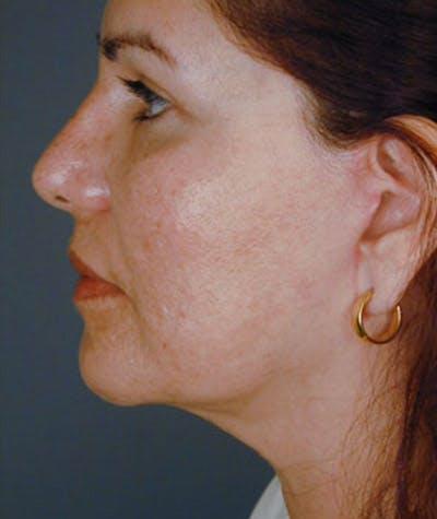 Rhinoplasty Gallery - Patient 8524755 - Image 2