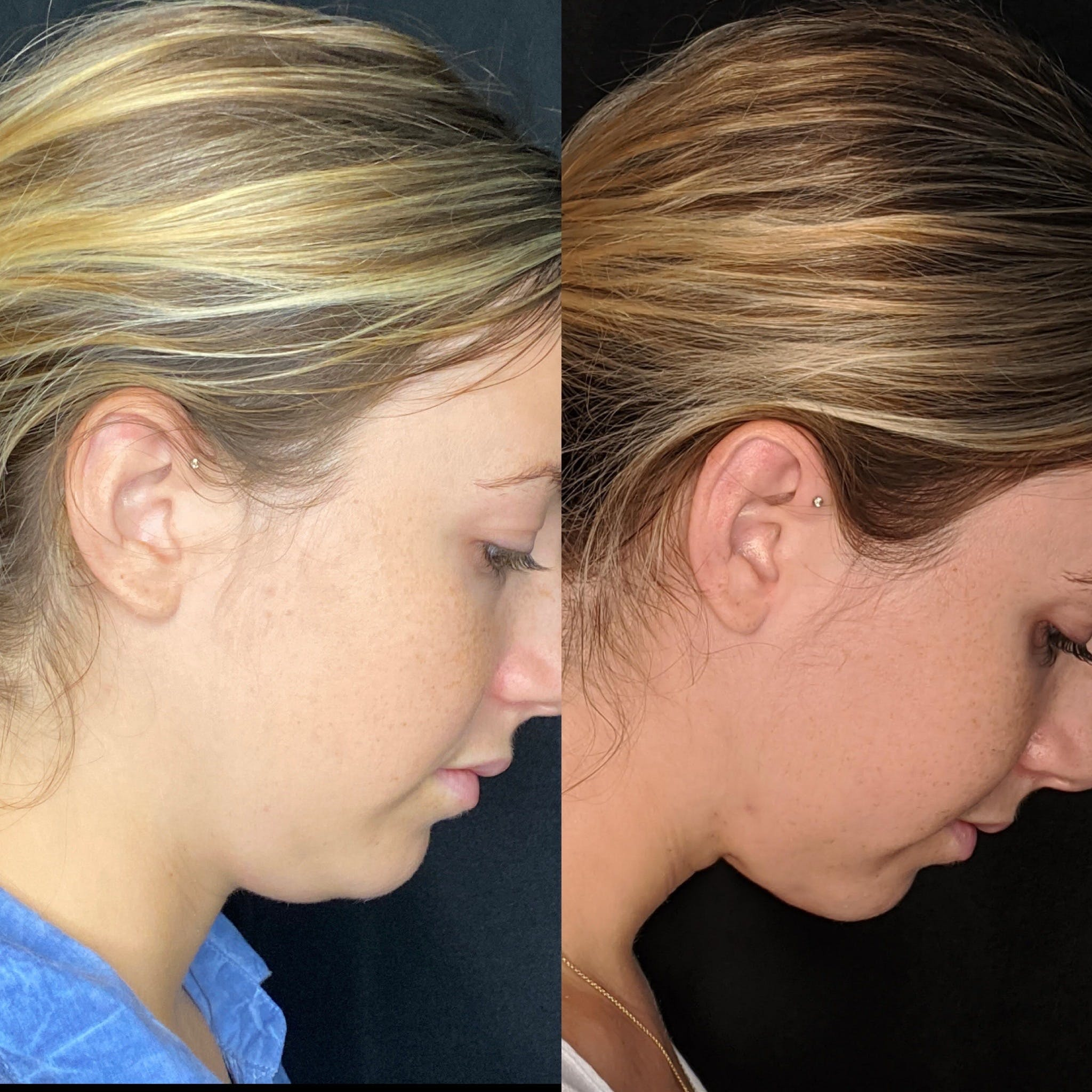 Submental Liposuction Gallery - Patient 8525020 - Image 2