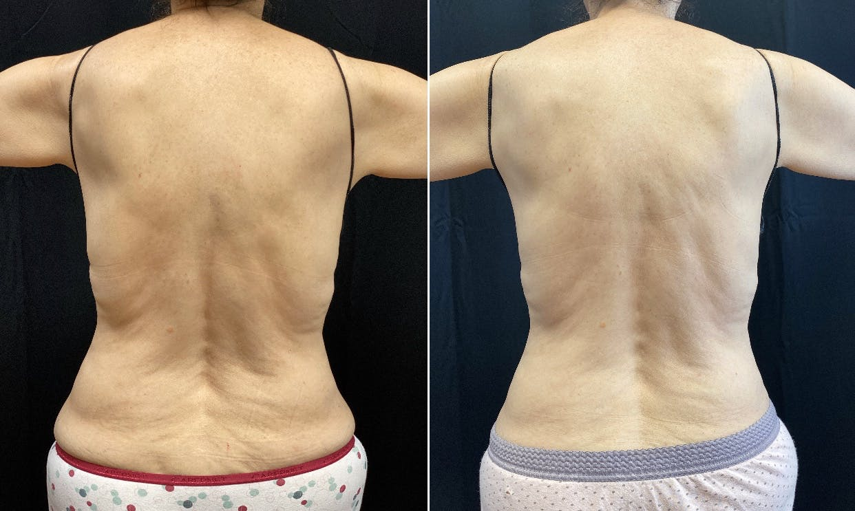 Bodyfx Radiofrequency Gallery - Patient 8525045 - Image 1