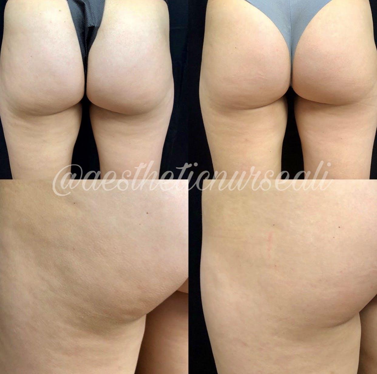 Bodyfx Radiofrequency Gallery - Patient 8525046 - Image 1