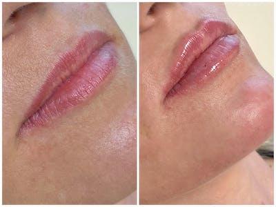 Lip Fillers Gallery - Patient 8525073 - Image 1