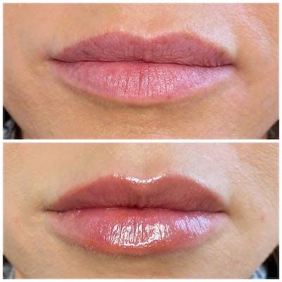 Lip Fillers Gallery - Patient 8525076 - Image 1