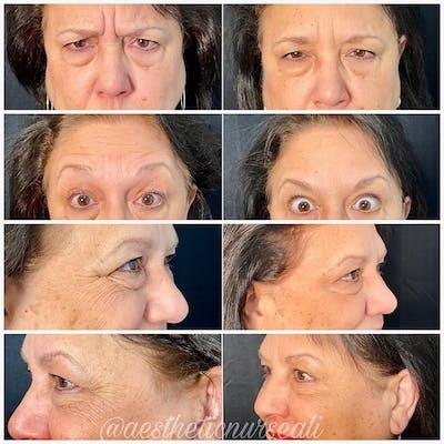 Neurotoxin Botox Gallery - Patient 8525147 - Image 1